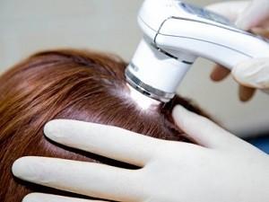 круговидное выпадение волос 5