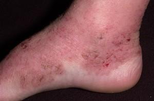 атопический дерматит у взрослых 2
