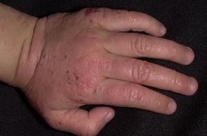 атопический дерматит у детей 1