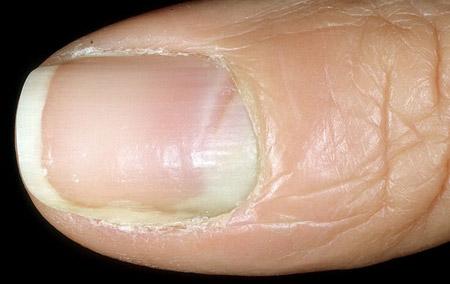 Лечение грибка ногтей в Ростове, батайске