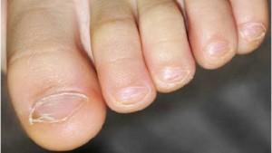 грибок ногтей 3